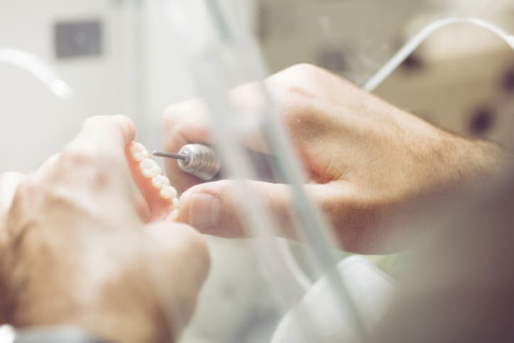 Tandprothesen: de antwoorden op je vragen